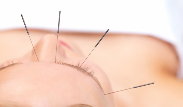 Head Acupuncture - Home Remedies for Migraines