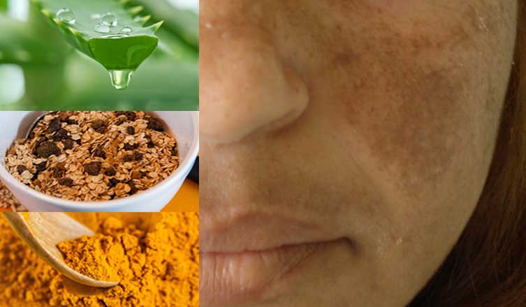 Home Remedies for Melasma – The Ultimate Guide to Hyperpigmentation