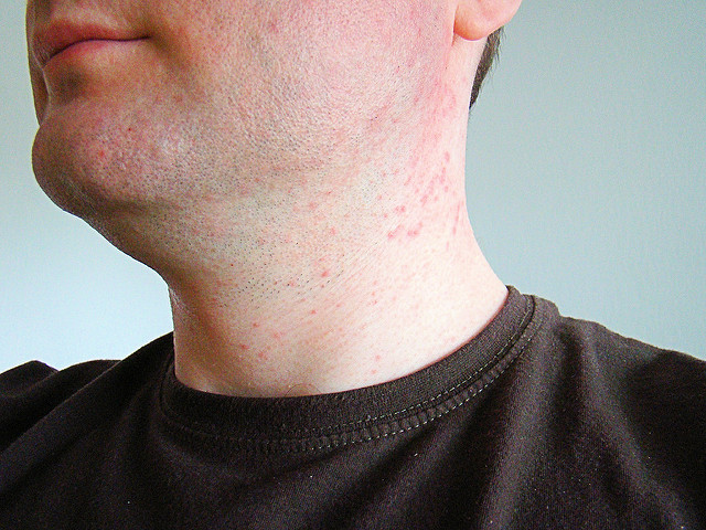 Heat rash on face - Home remedies for heat rash