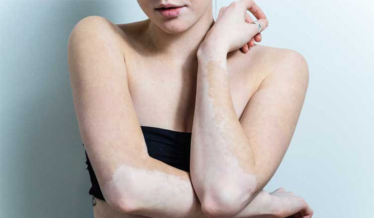 Home Remedies for Tinea Versicolor You Need to Know to Make You Beautiful Again