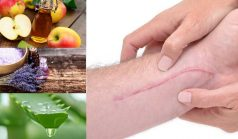 Home Remedies for Scar Removal