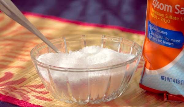 Epsom Salt - Home Remedies for Shingles