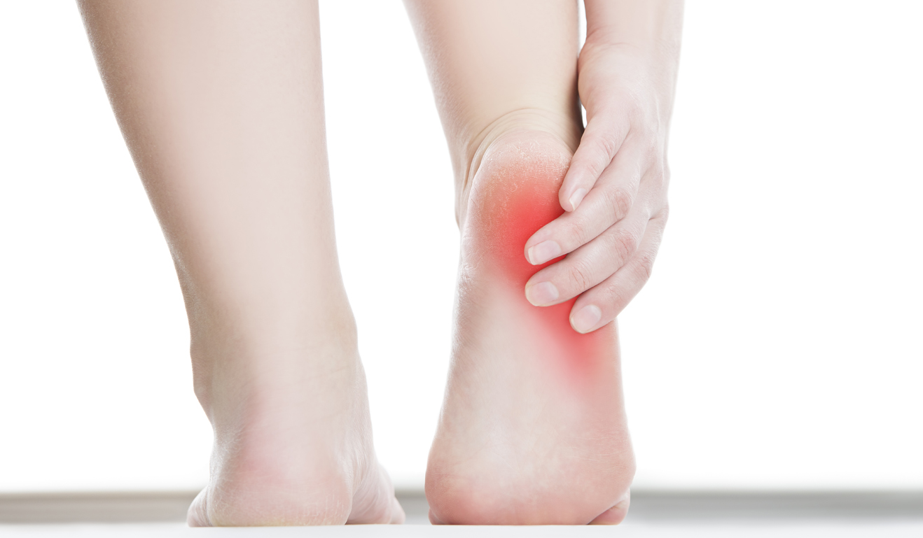 Top 19 Home Remedies for Heel Spurs That Professional Athletes Rely On