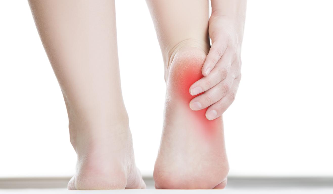 Почему трескаются пятки на ногах? Как их лечить и в чем 5
