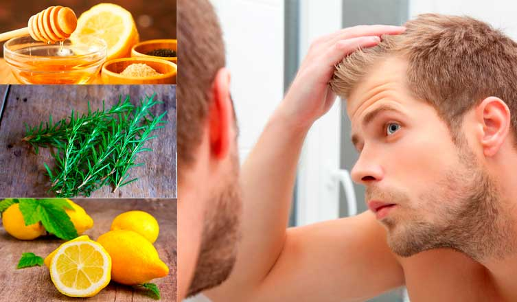 Top 18 Home Remedies for Alopecia – All You Need to Know About Hair Loss