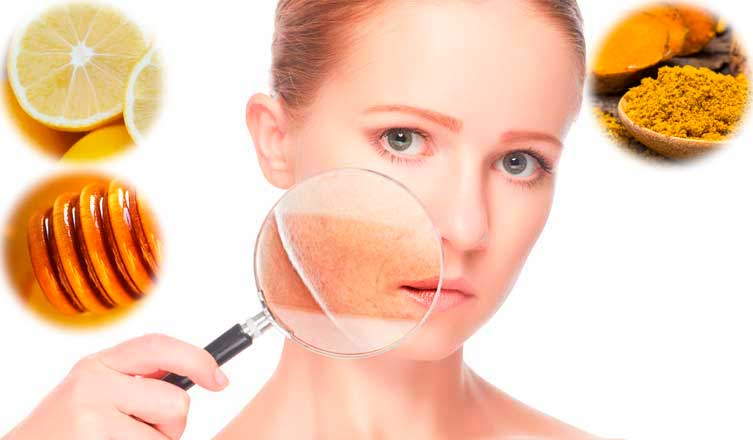 How to Get Rid of Hyperpigmentation – The Best Guide for You