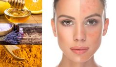 Home Remedies For Rosacea