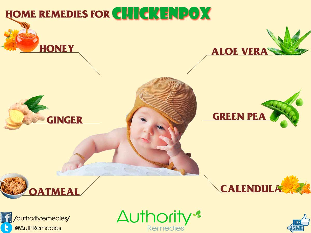 Home Remedies for Chickenpox - Authority Remedies
