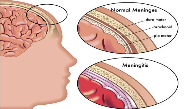 Meningitis causes and symptoms - How to Prevent Meningitis