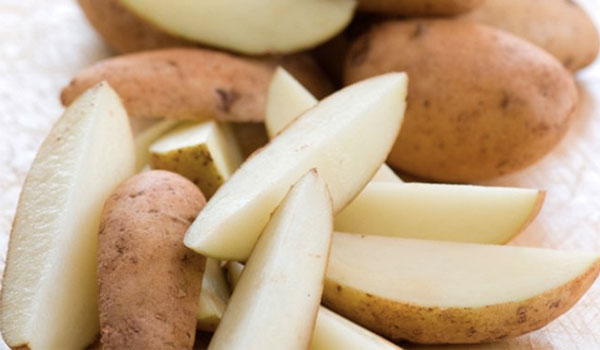 Potatoes - Home Remedies for Minor Burns