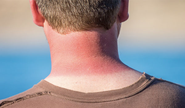 Sunburn - Top Health Benefits of Baking Soda