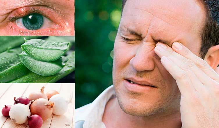 Home Remedies for A Stye