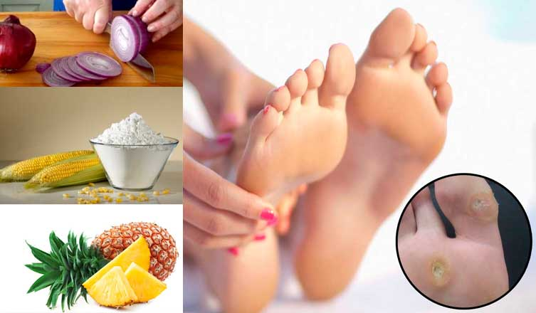Home Remedies for Calluses