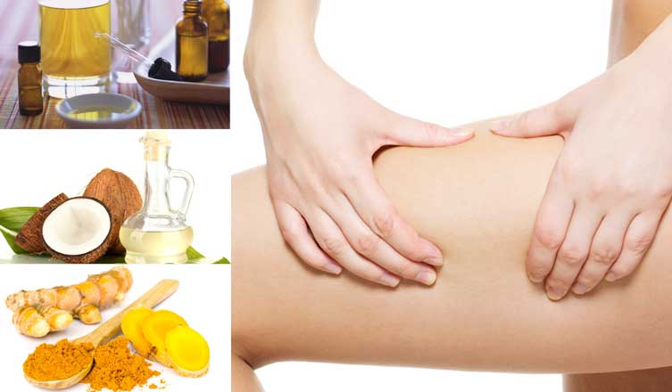Can These Home Remedies for Cellulitis Work Well? Here is The Answer