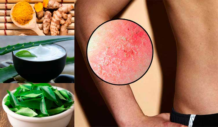 Top 18 Home Remedies for Chafing and What You Need to Know About Prevention