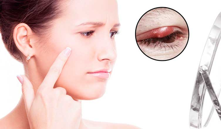Amazing Tips on How to Get Rid of Blepharitis