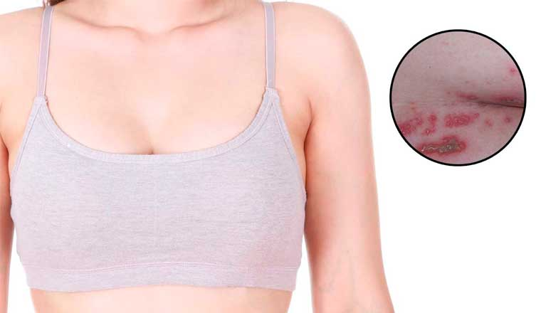 How to Get Rid of Rash Under Breast