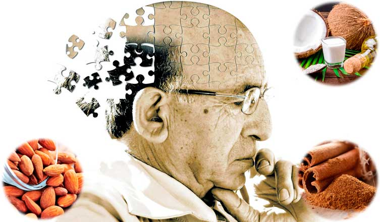 How to Prevent Alzheimer's Disease