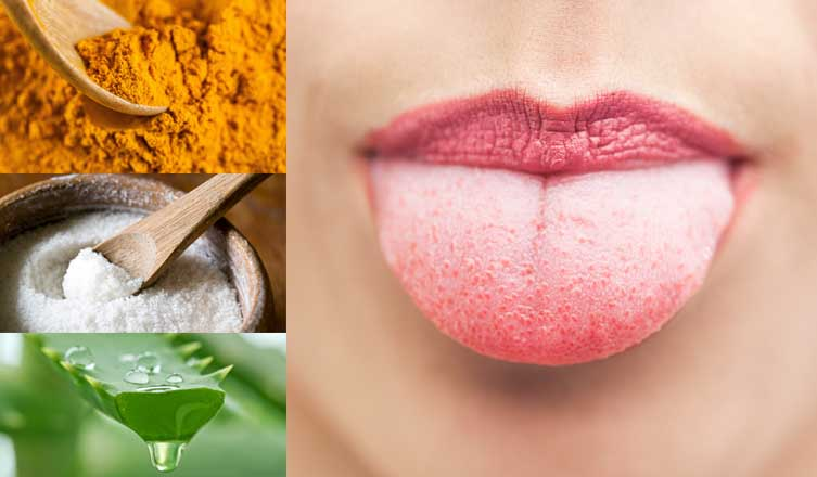 Home Remedies for White-Coated Tongue