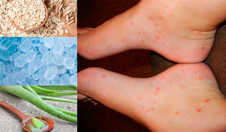 How to Treat Chigger Bites – Top 15 Natural Treatments