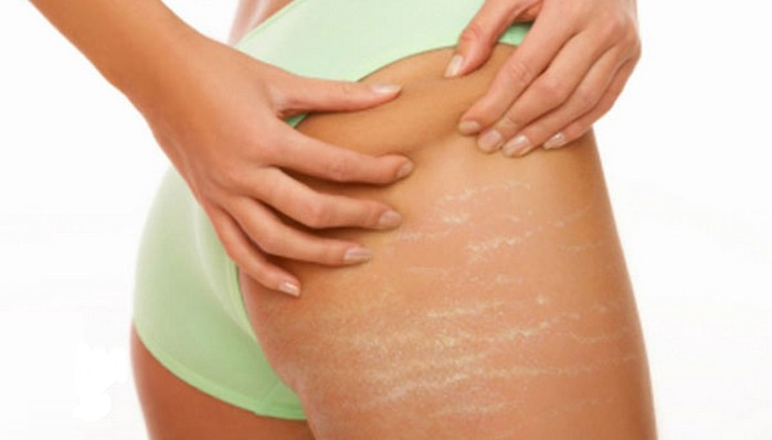 Stretch Marks - How to Use Coconut Oil