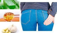 Home Remedies for Pilonidal Cysts – Authority Remedies