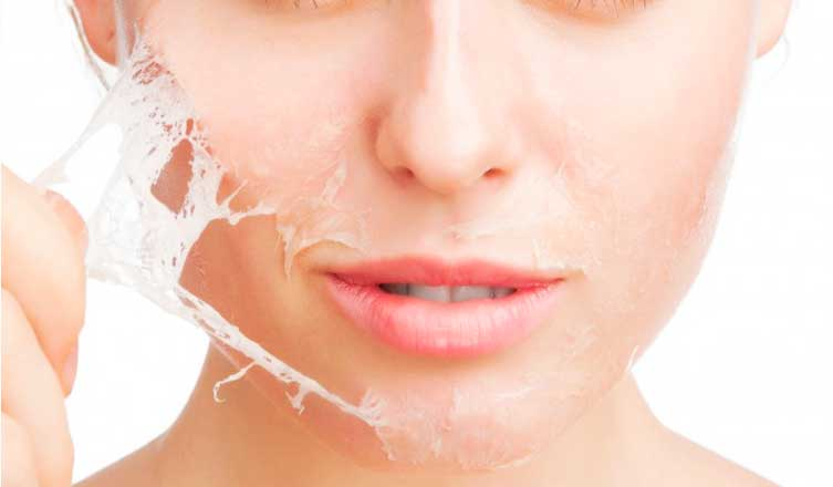 Facial peel home remedies
