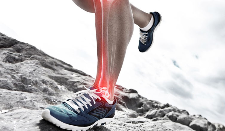 how to treat shin splints – authority remedies, Human Body