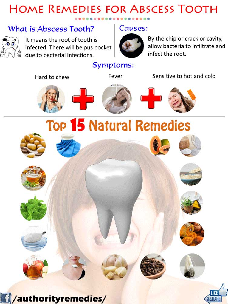 Abscessed Tooth Natural Treatments – Top 15 Tips (Infographic)