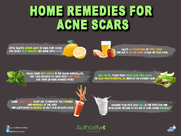 Acne Scar Natural Treatments – 6 Simple Tips (Infographic)