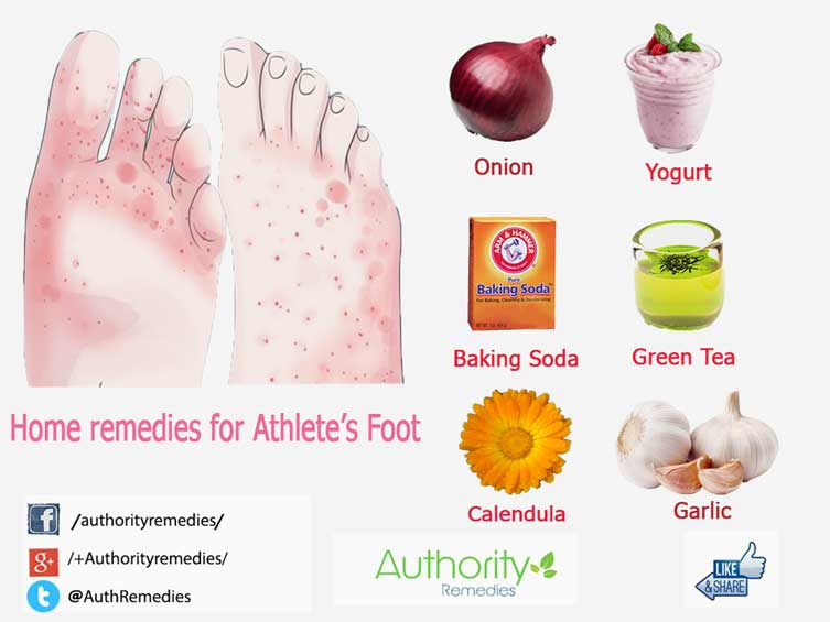 Athelete's Foot Natural Treatments – Top 6 Simple Tips (Infographic)