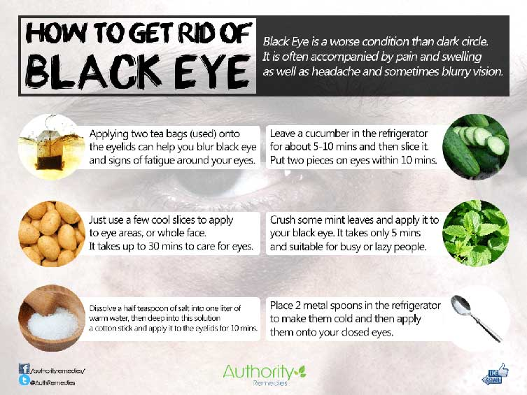Black Eye Natural Treatments – Top 6 Simple Tips (Infographic)