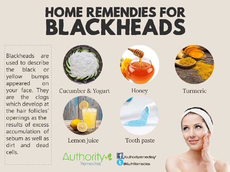Blackhead Natural Treatments – Top 5 Simple Tips (Infographic)