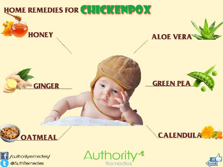 Chickenpox Natural Treatments – 6 Simple Tips (Infographic)