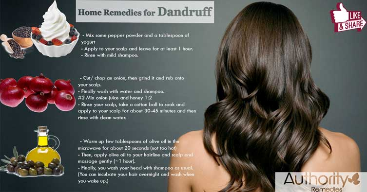 Dandruff Natural Treatments – Top 3 Simple Tips (Infographic)