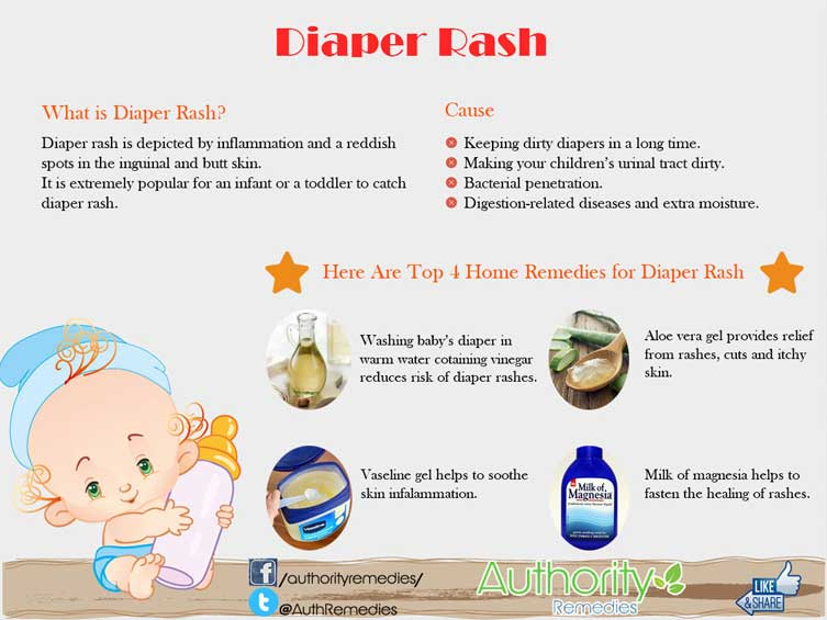 Diaper Rash Natural Treatment – Top 4 Simple Tips (Infographic)