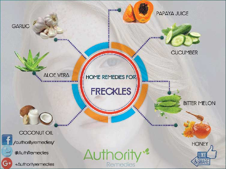 Freckle Natural Treatments – Top 7 Home Remedies (Infographic)
