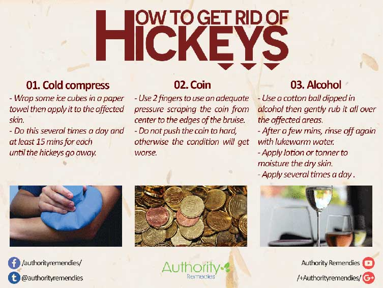 Hickey Natural Treatments – Top 3 Simple Tips (Infographic)