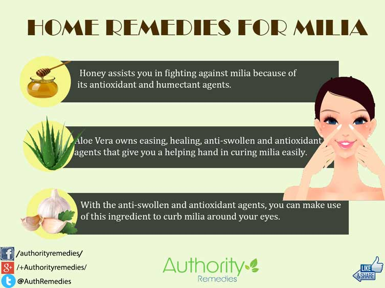 Milia Natural Treatments – Top 3 Simple Home Remedies (Infographic)