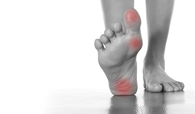 uric acid test values gout pain treatment can gout affect hips
