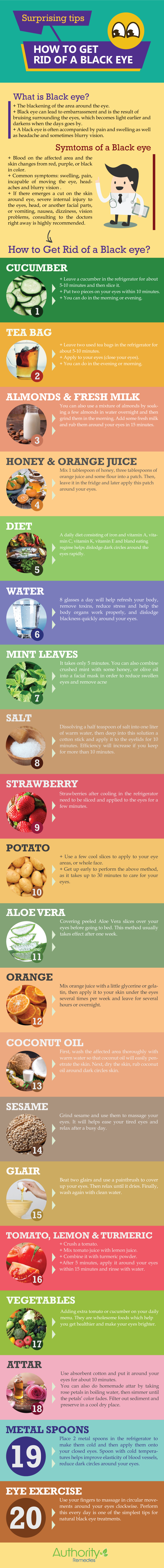 Infographic - How to get rid of a black eye