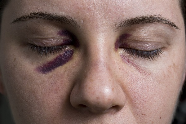 A black eye - How to get rid of a black eye